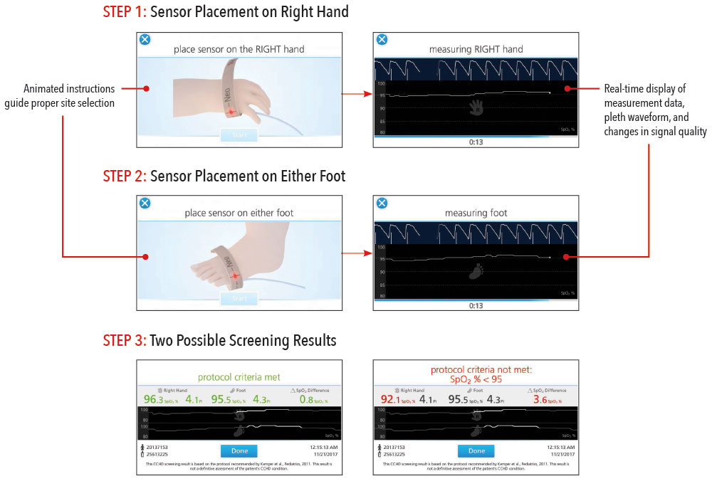 Masimo - Eve Step-By-Step Instruction Improves Consistency and Workflow Efficiency