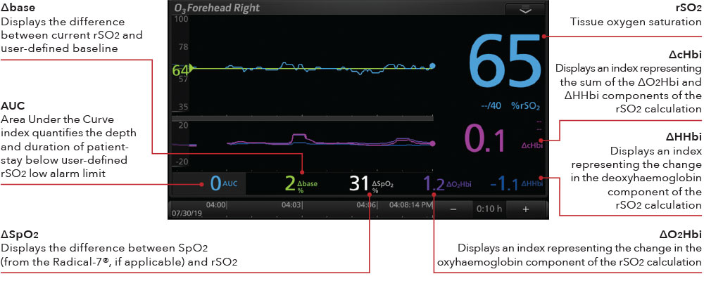 Masimo - O3 Display Cerebral Oximetry