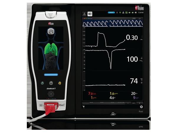 Masimo Pulse Oximeter >> Masimo - Oxygen Reserve Index (ORi™)