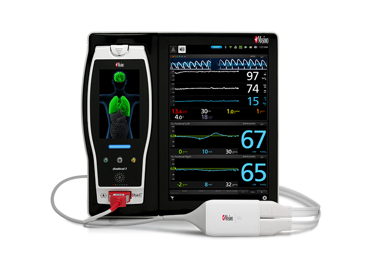 Masimo - Root with O3 Regional Oximetry