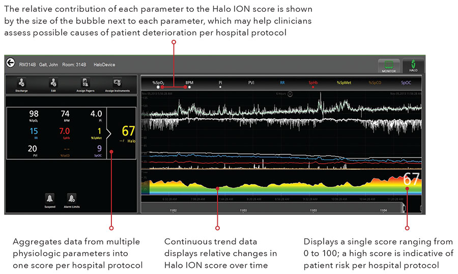 Masimo - An Automated, Personalized, Continuous Patient Score