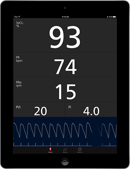 Masimo - Measurements shown on Masimo Professional Health App