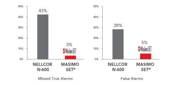 Masimo - Alarm Reliability with Signal Extraction Performance During Motion and Low Perfusion